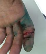 13_Nicu Finger